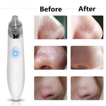 Harga 1PCS Cleaner Machine + 4PCS Suction head Electric Black head Cleaner Acne Remover Facial Pore Blemish Cleanser Tool Kit White