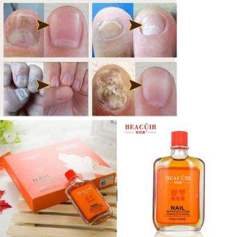 Harga Nail Treatment Essence Nail and Foot Whitening Toe Nail Fungus Removal